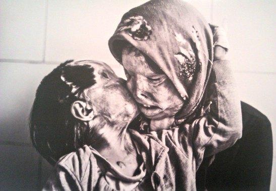 Mare i filla cremades amb àcid. Bam (Iran)